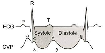 Central Venous Pressure: Principles, Measurement, and Interpretation