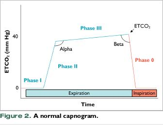 Capnography in Dogs - VetFolio