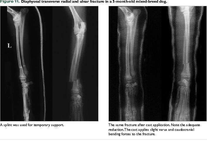 An In-Depth Look: Conservative Fracture Treatment Using