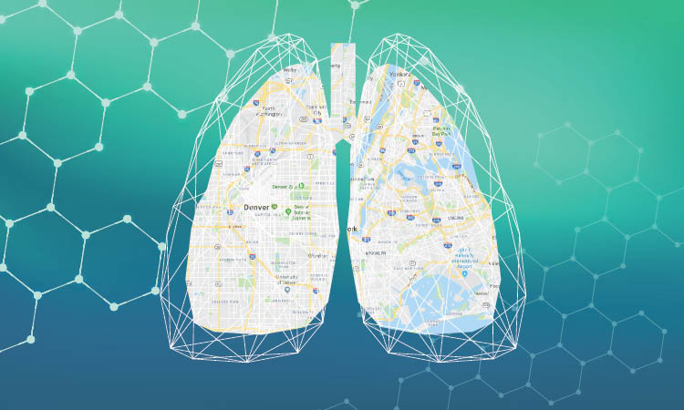 Navigating Asthma Control: A Severe Asthma Roadmap for Improved Diagnosis and Personalized Treatment – Now with COVID-19 Updates