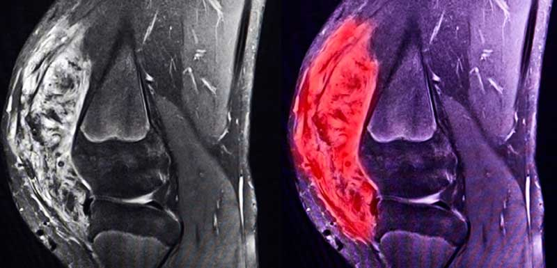 Tenosynovial Giant Cell Tumors: New Treatments for a Distinct and Often Misdiagnosed Disease