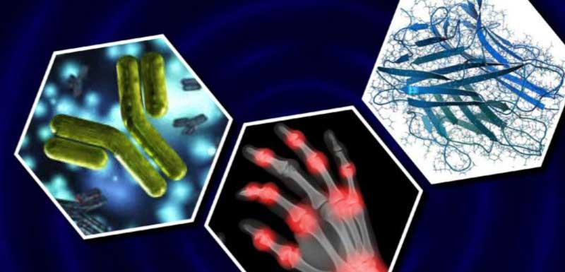 Utilizing Serological Biomarkers in Assessing the Disease Severity of Rheumatoid Arthritis