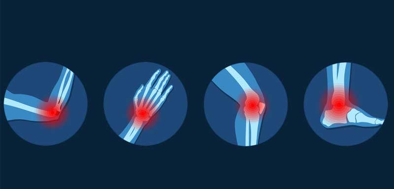 Navigating the Recent Rheumatoid Arthritis Guidelines to Achieve Disease Remission and Reduce Patient Burden
