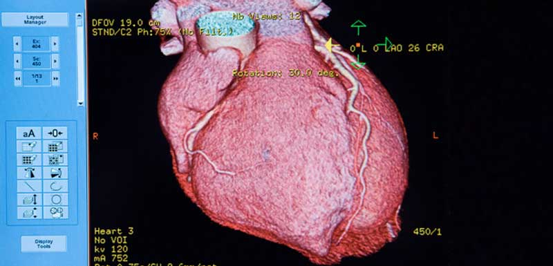 Noninvasive Cardiac Imaging: Enhancing Our Clinical Practice