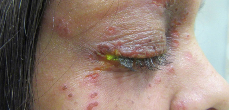 Adult patients with Moderate-to-Severe Atopic Dermatitis