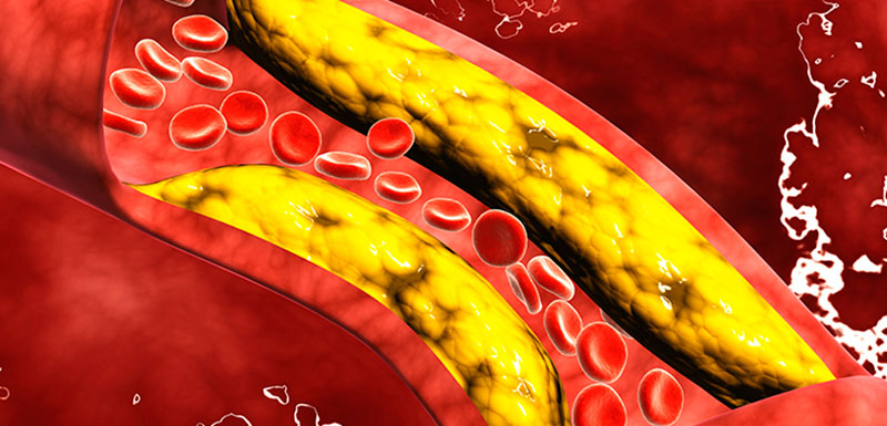 How To Apply What's New in Hypercholesterolemia: Hypercholesterolemia How-Tos – Part 2