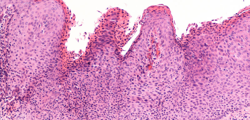 Advanced Cutaneous Squamous Cell Carcinoma in the Era of Systemic Immunotherapy: Implications for Risk Stratification and Treatment