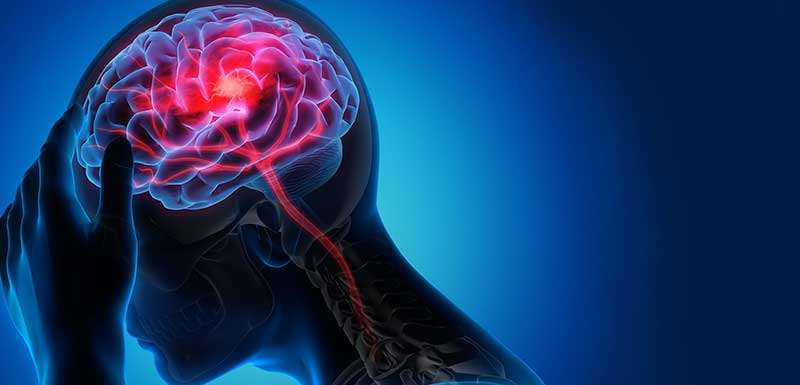 Diagnosis, Treatment and Prevention Therapies in Primary Headache Disorders