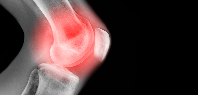 A 35-year-old Woman with Worsening Pain and Swelling in the Knee