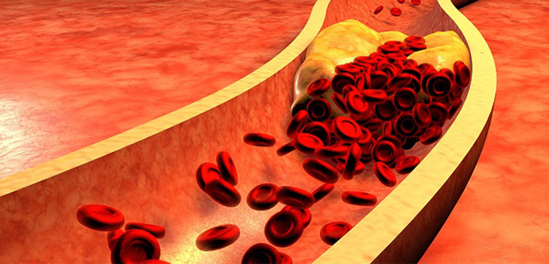How To Apply What's New in Hypercholesterolemia-Highlights in Hypercholesterolemia – Part 1