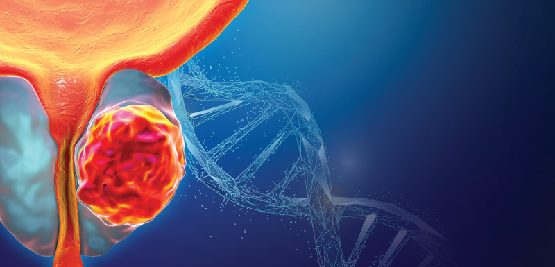 Examining the Clinical Potential of PARP Inhibitors in Prostate Cancer