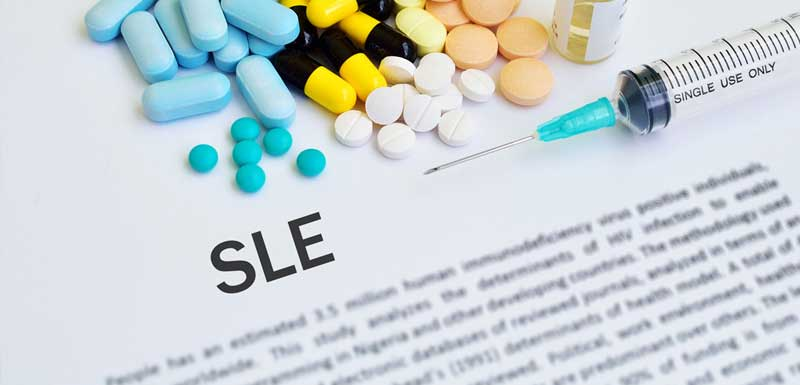 Improving the Application of Shared Decision-Making in the Selection of SLE Treatments