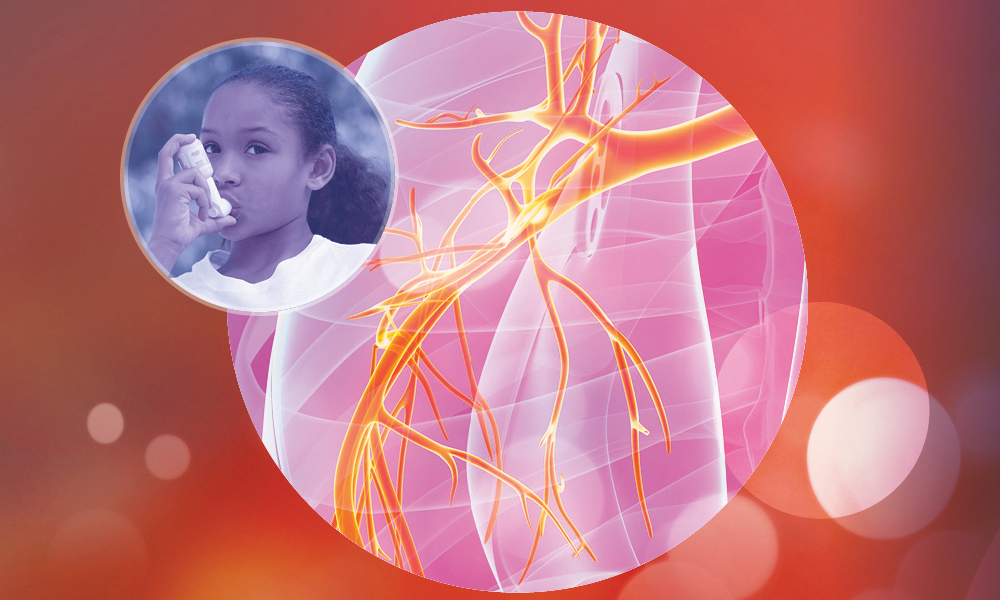 Pediatric Case Simulation: Clinical Pursuit to Improving Uncontrolled Asthma