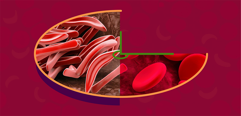 The Time Is Now: Advancing the Care of Adolescent and Adult Patients With Sickle Cell Disease