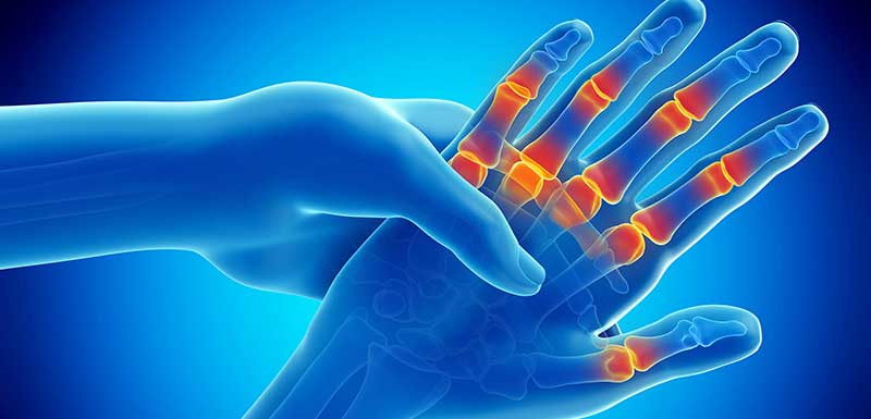 A Closer Look at Evolving Treatment Strategies for Rheumatoid Arthritis