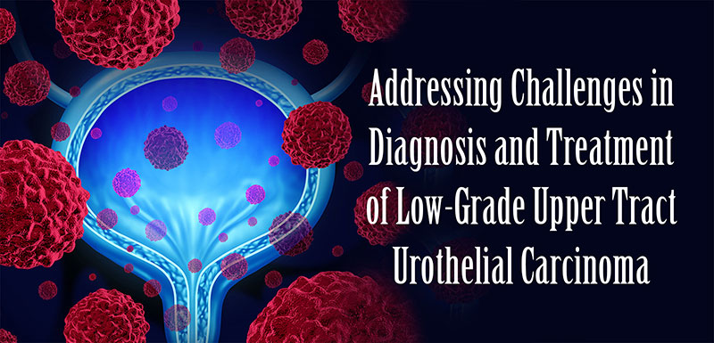 Addressing Challenges in Diagnosis and Treatment of Low-Grade Upper Tract Urothelial Carcinoma