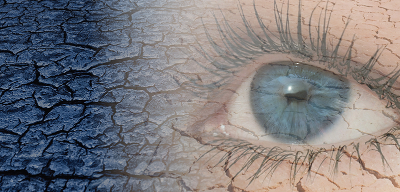 Keep an Eye Out: Diagnosis and Management of Dry Eye Disease