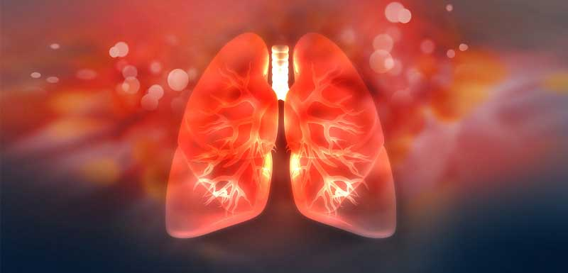 Eosinophilia in Patients With Asthma: A Sign of Eosinophilic Granulomatosis With Polyangitis (EGPA)