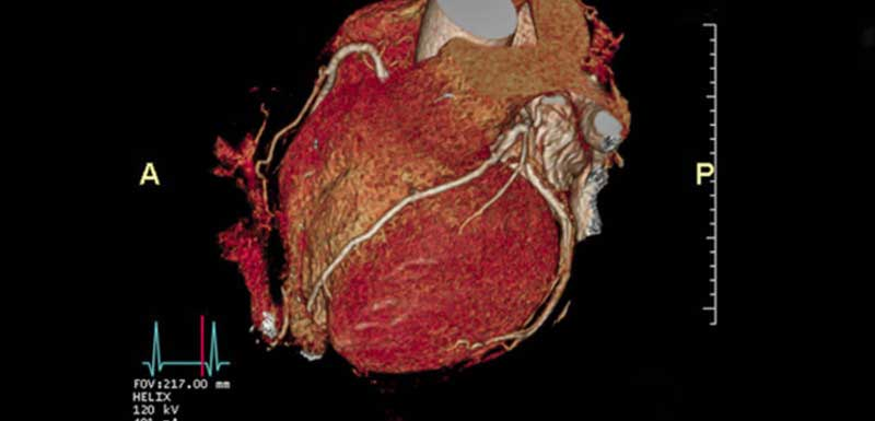Updated Appropriate Use Criteria (AUC) for Cardiac Imaging: What PCPs Need to Know Now