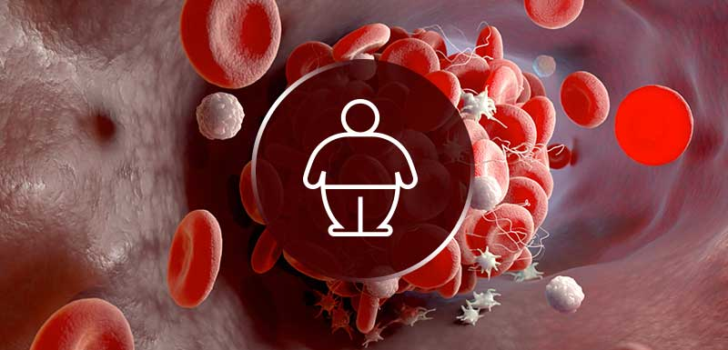 Breakthroughs for Obese Patients with VTE