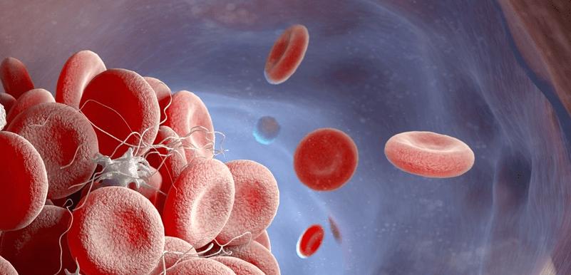COVID-19 Infections and Hematologic Disturbances