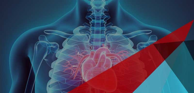 PCSK9 Inhibitors in Practice: Real-World Strategies for Cardiovascular Risk Reduction