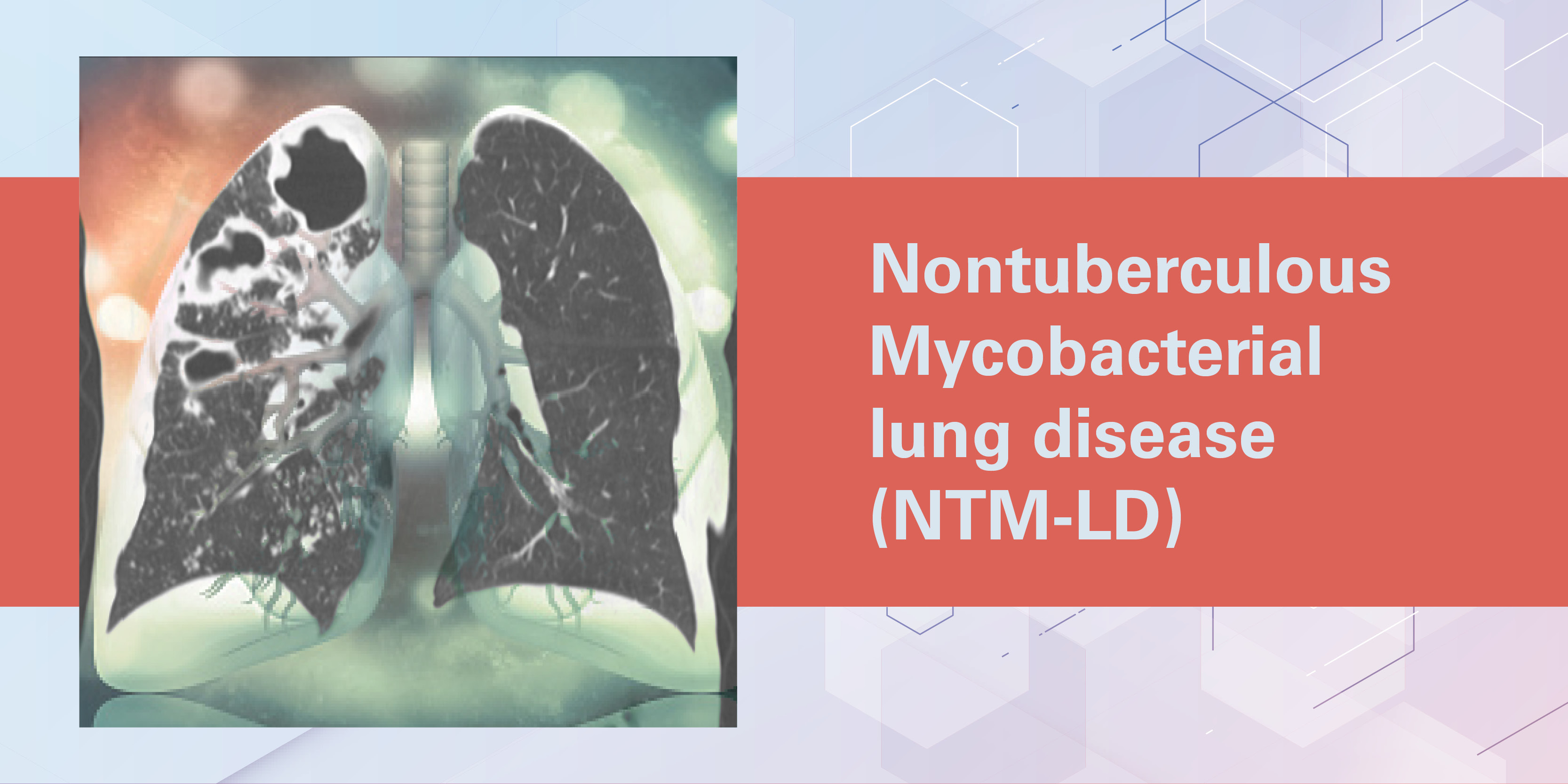 Can You Identify Patients with NTM? Diagnosis, Treatment & Monitoring