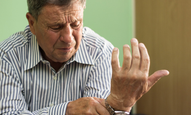 Case Clinic: Considerations for Immunotherapy in a Patient With Moderate Rheumatoid Arthritis