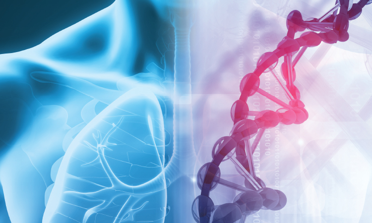 Early Diagnosis and Augmentation for Alpha-1 Antitrypsin Deficiency Lung Disease: A Care Team Forum℠