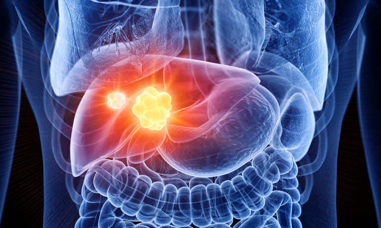 New Systemic Therapies in Hepatocellular Carcinoma